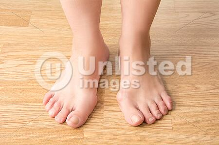 hallux valgus bunion in foot stock photos