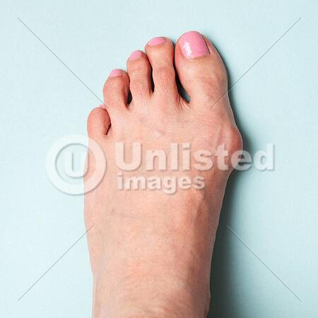 bunion in foot valgus deformation from narrow shoes latinstock